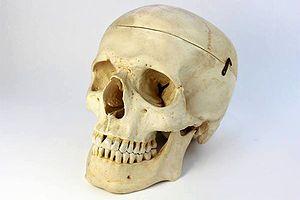 西ドイツ SOMSO製 実物大医学標本模型 ・頭蓋骨
